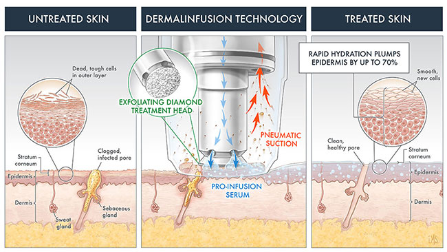 Dermalinfusion technology diagram