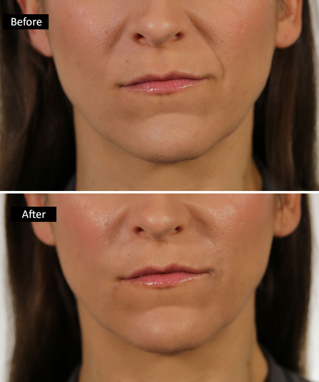 Before and after Versa fillers