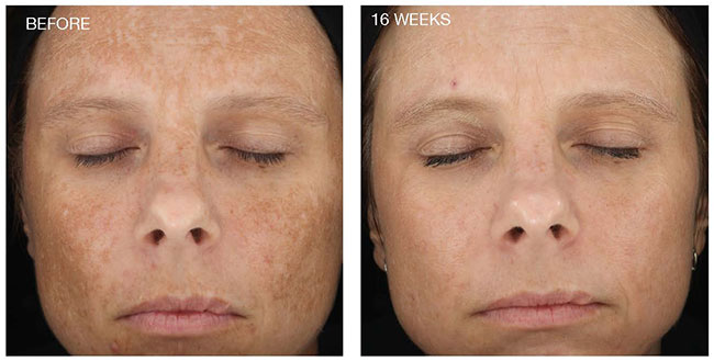 Before and after Dermalinfusion treatment