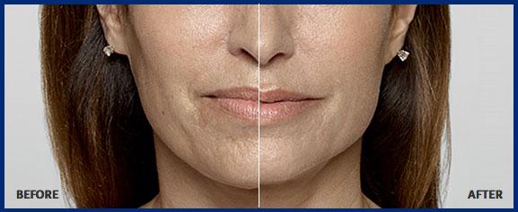 Skin Lip Fillers Sarasota - Bowtox Boutique Med Spa