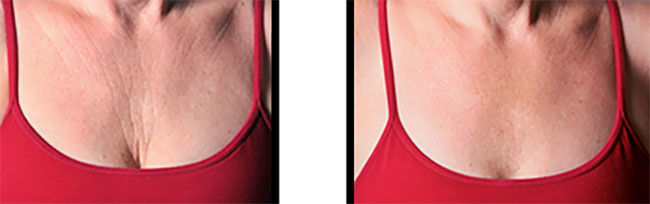 Chest before and after Sculptra