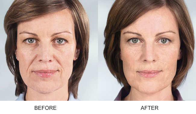 Before and after comparison with Sculptra